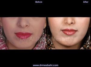 Chin Augmentation-02