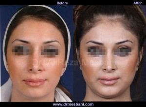 Chin Augmentation-06