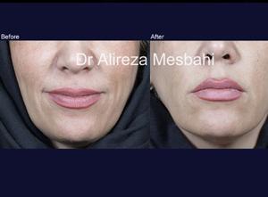 Lip Augmentation-08