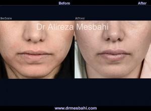 Lip Augmentation-09