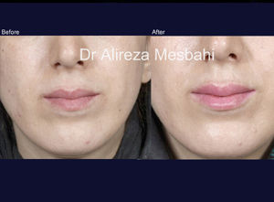 Lip Augmentation-06
