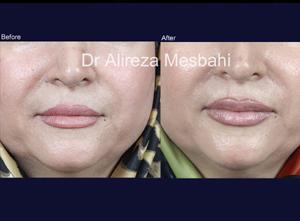 Lip Augmentation-05