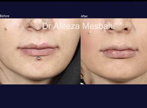 Lip Augmentation-02